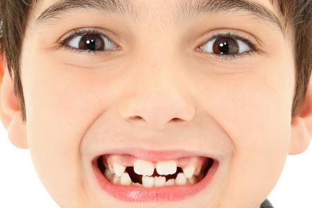 누락 된 치아와 매력적인 젊은 소년 세부를 닫습니다. 스톡 콘텐츠