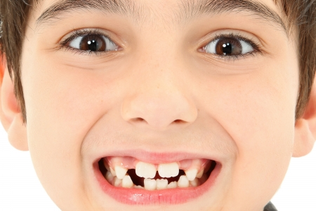 Attractive young boy with missing teeth close up detail.