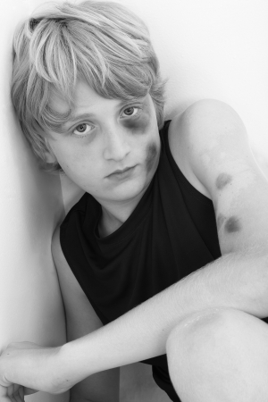 emotional: Close up of a young teen boy child with swollen brused eye and face in black and white.