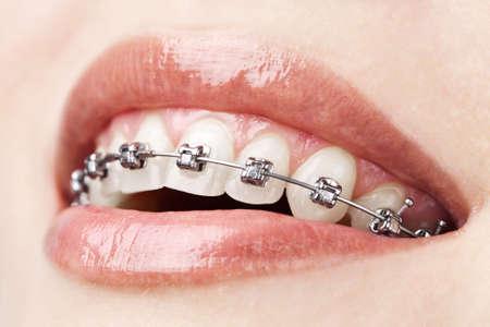 orthodontie: dents avec bretelles Banque d'images