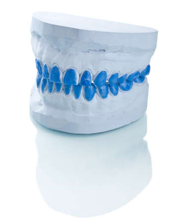 individual plaster dental molds to make trays photo
