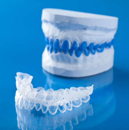 dental prophylaxis: individual tooth tray for whitening