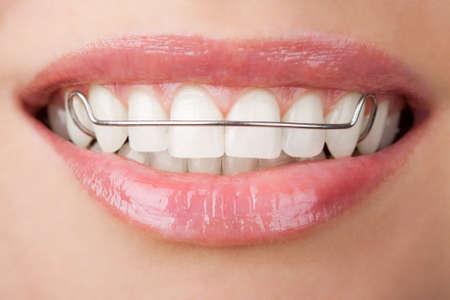 orthodontie: dents avec retenue