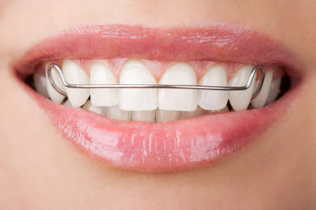 teeth with retainer photo
