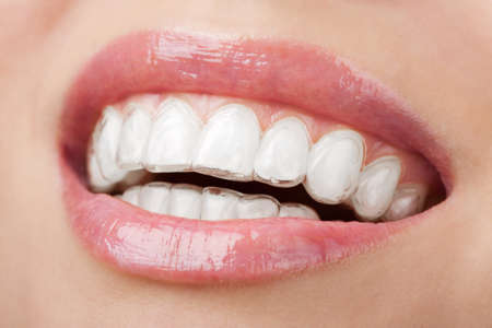 teeth with whitening tray photo