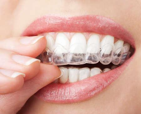 bandejas: dientes con bandeja de blanqueamiento Foto de archivo