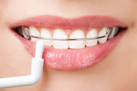orthodontics: cleaning teeth with retainer  Stock Photo