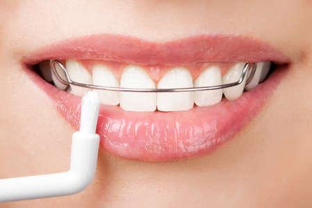 ortodoncia: limpieza de los dientes con retenedor