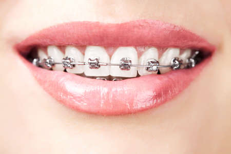 braces: teeth with braces