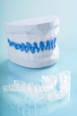 individual tooth tray for whitening  photo