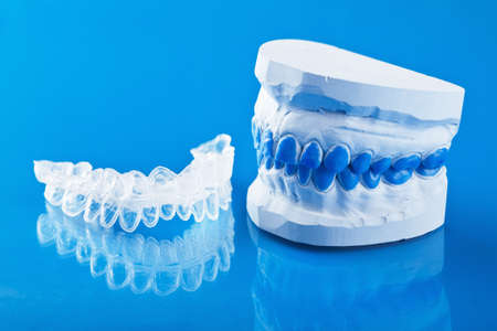dental prophylaxis: individual tooth tray for whitening and mold