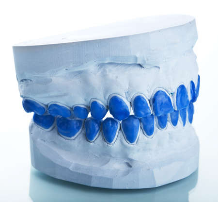 individual plaster dental molds to make trays