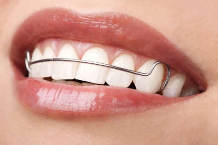 woman beautiful teeth with retainer orthodontic correction
