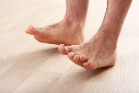 man doing flatfoot correction gymnastic exercise standing on heel at home Stockfoto