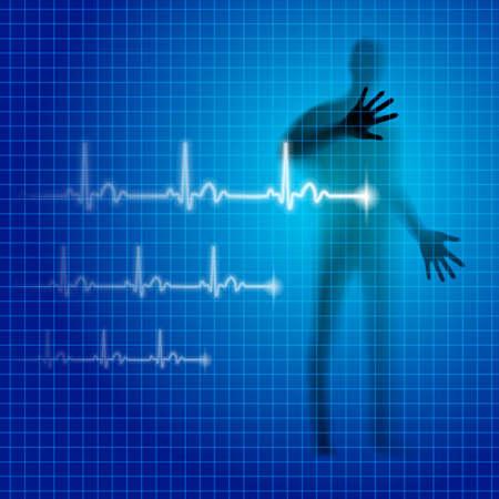 prophylaxe: Neon Blue medizinischen Hintergrund mit menschlichen Silhouette und Kardiogramm Linie Illustration