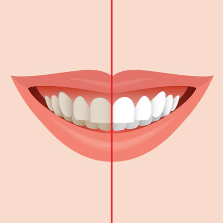 bleaching: Smiling Mouth with Cleaning Teeth, Before and After Bleaching treatment