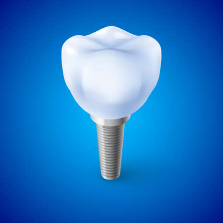 orthodontist: Isometric Concept of Human Dental Implant on Blue