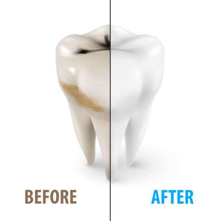 Blanchiment des dents Icône, Symbole de dentiste à isométrique Style sur blanc