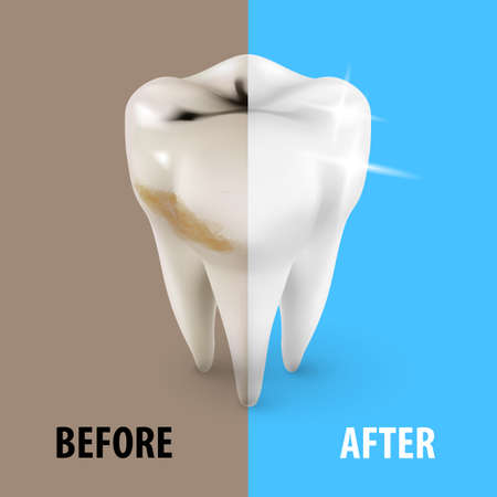 whitening: Teeth Whitening Icon, Dentist Symbol in Isometric Style