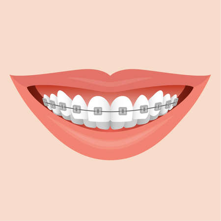 smiling: Closeup  Human Lips Smile with Metal Braces Illustration