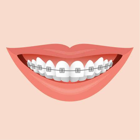 la boca: Labios sonrisa Primer plano con tiradores de metal