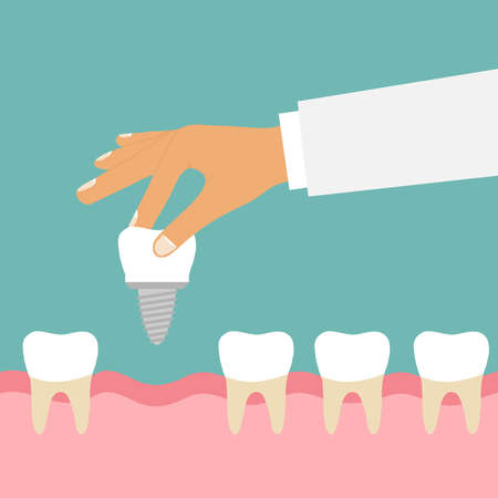 The hand holds the tooth implant.