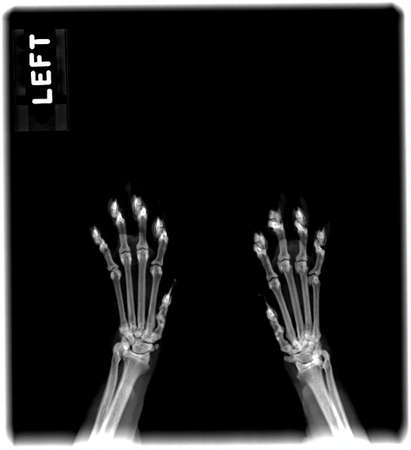 Radiograph of the paws of a cat Stock Photo