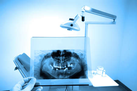 photo of full mouth dental xray(x-ray), blue tone