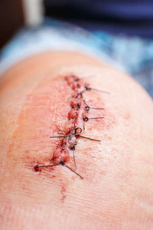 scar: scar from operation with a black fiber