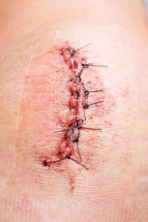 incision: scar from operation with a black fiber