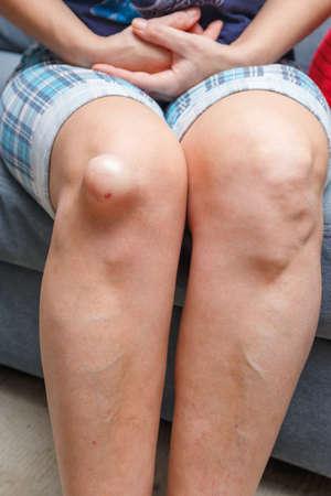 luxacion: Rodilla lesionada Mujer, de cerca