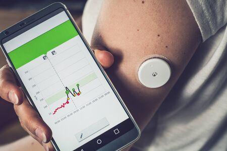 Frau, die den Glukosespiegel mit einem Fernsensor und einem Mobiltelefon überprüft, die Glukosespiegel des Sensors ohne Blut. Behandlung von Diabetes. Standard-Bild