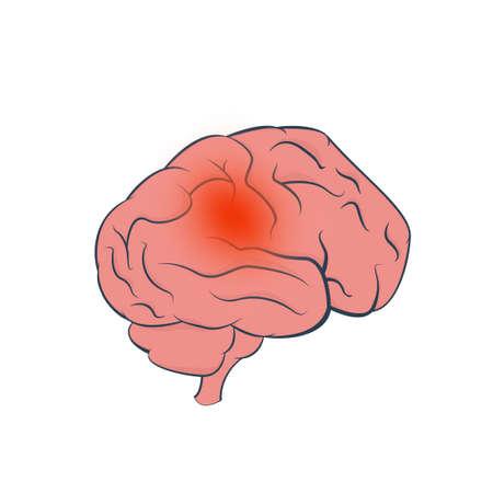 Conception de vecteur de tumeur cérébrale