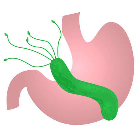 Helicobacter pylori in the stomach. vector illustration