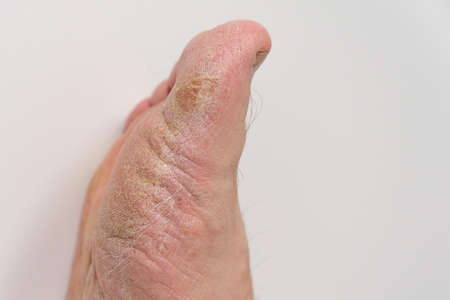 Fungus of the foot of a person. Close-up. Isolate Stock Photo