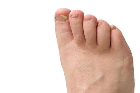 Fungus of toenails and human skin. Close-up. Isolate Banco de Imagens