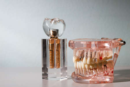 implanted: glass jaw model with implanted dentures Stock Photo