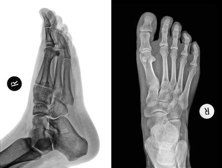 fractura: Detalle de una radiograf�a de un pie
