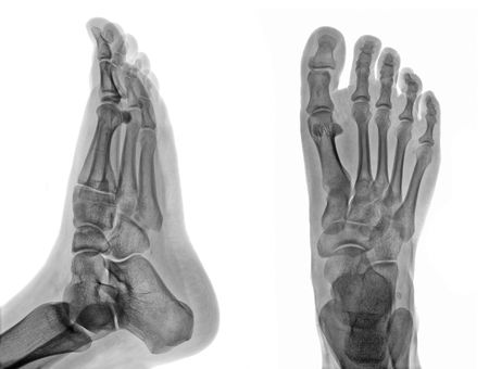 radiogram: Detail of an x-ray of a foot