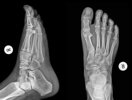 Detalle de una radiografía de un pie