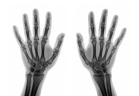 X-ray of the hands on white background