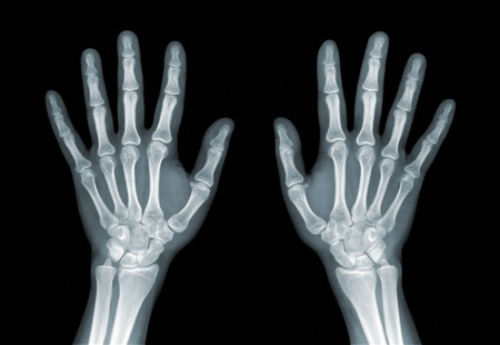 bone cancer: X-ray of the hands on black background Stock Photo