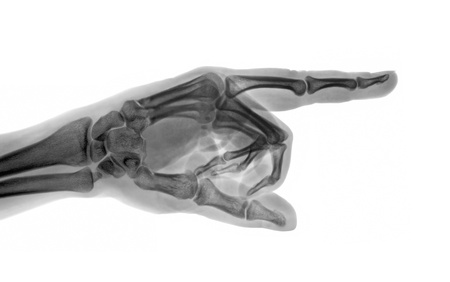 Pointing X-ray hand photo
