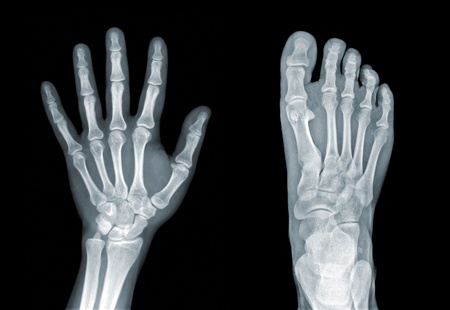 radiogram: X-ray of hand and foot on black background