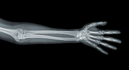 radiogram: Hand x-ray view on a black background Stock Photo