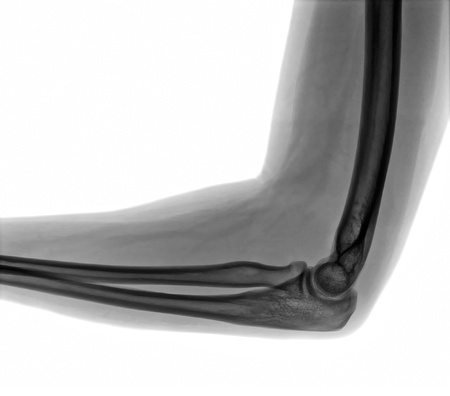 broken arm: X-ray of elbow on a white background Stock Photo