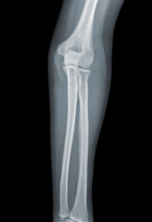 roentgen: X-ray negative of elbow view on a black background