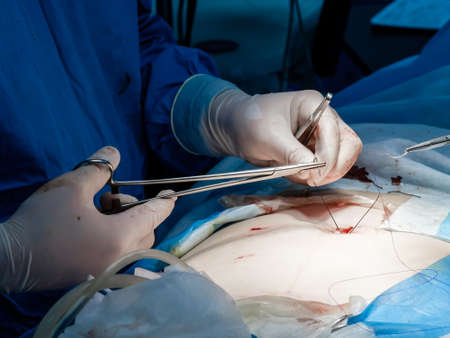 Doctors in blue uniforms use medical instruments and metal thread to suture human skin during minimally invasive surgery. Close-up hands in sterile gloves, covered with blood.