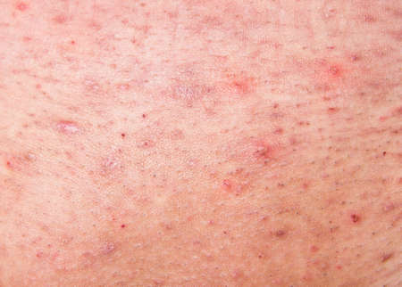 Acne on human skin close up