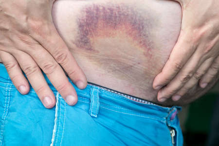 Bruise, hematoma on the human body. Large bruise, bruise on the stomach of a man after injury